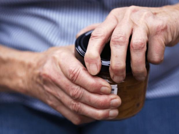 Boleci-sklepi-artritis
