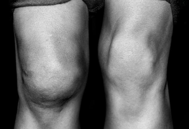 bolecine v misicah, oteklo koleno