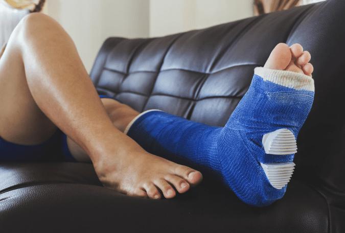 celjenje kosti po zlomu-gleženj