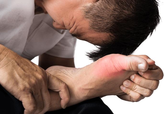 vzrok za bolecine v nogah: putika